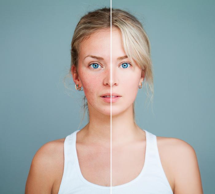 Acne Treatment Fort Collins Co Divine Dermatology