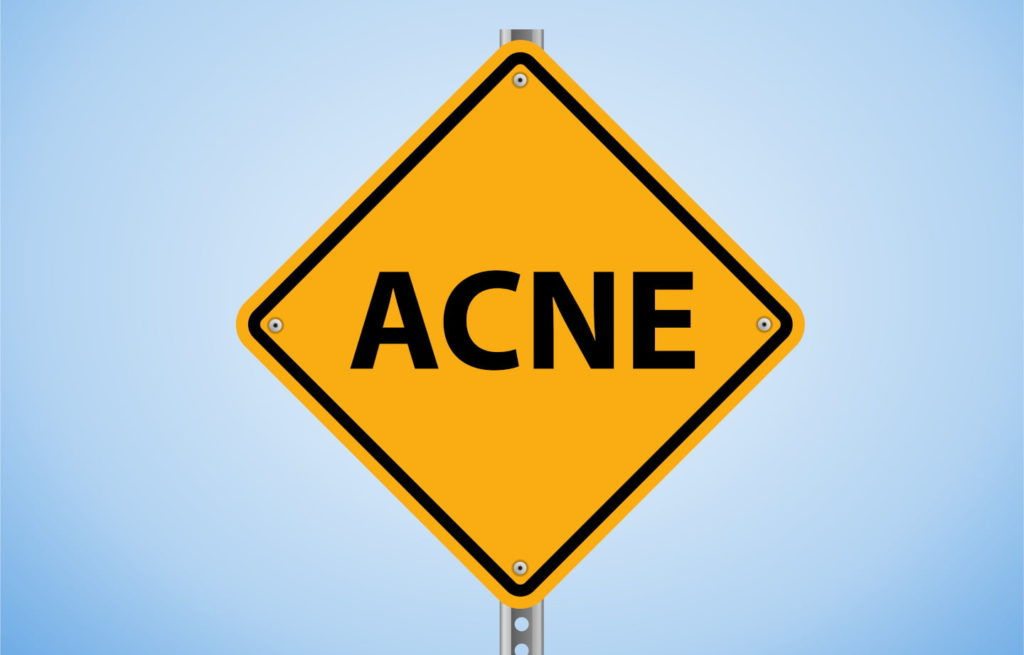 Acne Sign Board